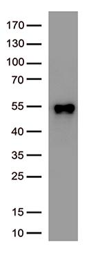 SARS-CoV-2 N蛋白