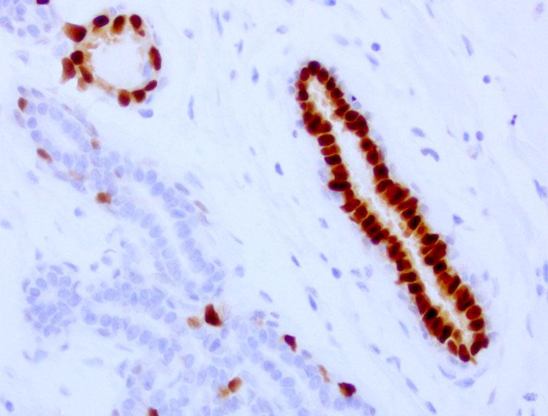 Progesterone Receptor(PGR) Mouse Monoclonal Antibody [Clone