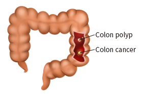 colorectal-cancer img