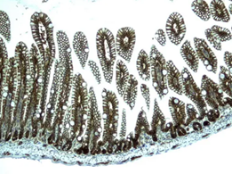 Mouse Colon tissue stained for β-catenin with ultra specific antibody (UM500015)