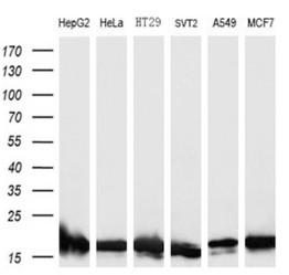 SOD1 antibody, cat# TA500495