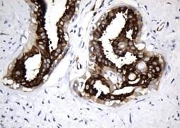 Microtubule-associated protein tau (MAPT-Tau) image