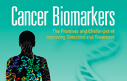 Cancer Biomarker